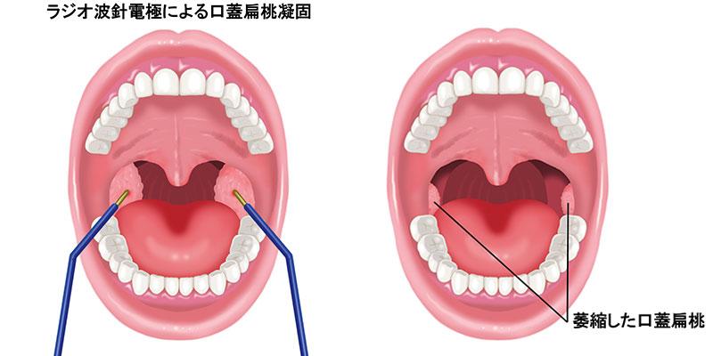 ー 手術 喉 し っ に